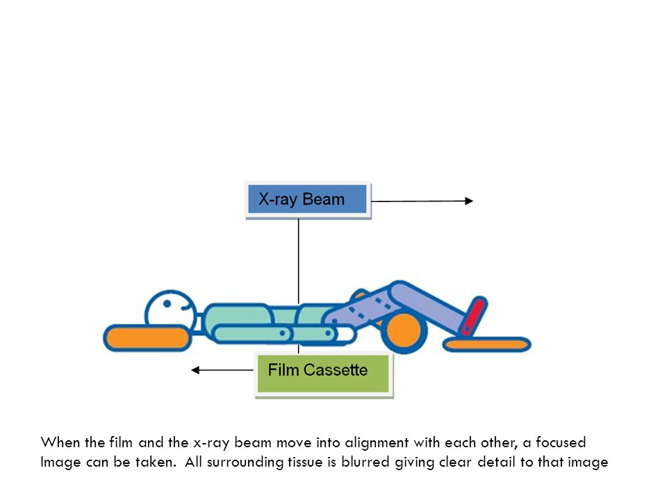 When the film and the x-ray beam move into alignment with each other, a focused Image can be taken.