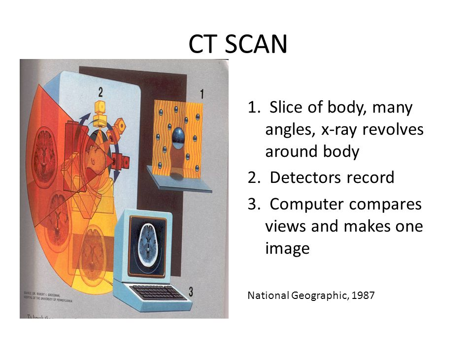 CT SCAN 1. Slice of body, many angles, x-ray revolves around body 2. Detectors record 3. Computer compares views and makes one image National Geograph