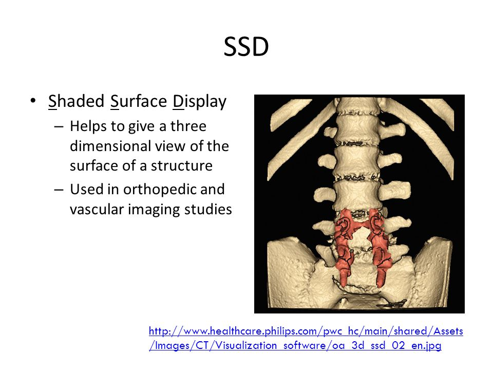SSD Shaded Surface Display – Helps to give a three dimensional view of the surface of a structure – Used in orthopedic and vascular imaging studies http://www.healthcare.philips.com/pwc_hc/main/shared/Assets /Images/CT/Visualization_software/oa_3d_ssd_02_en.jpg