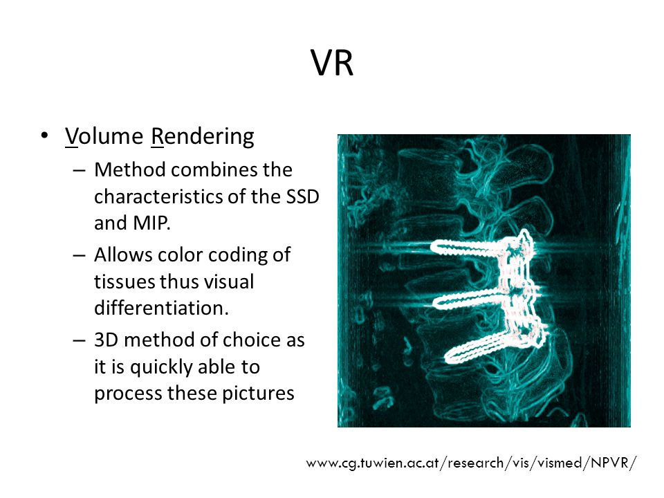 VR Volume Rendering – Method combines the characteristics of the SSD and MIP.
