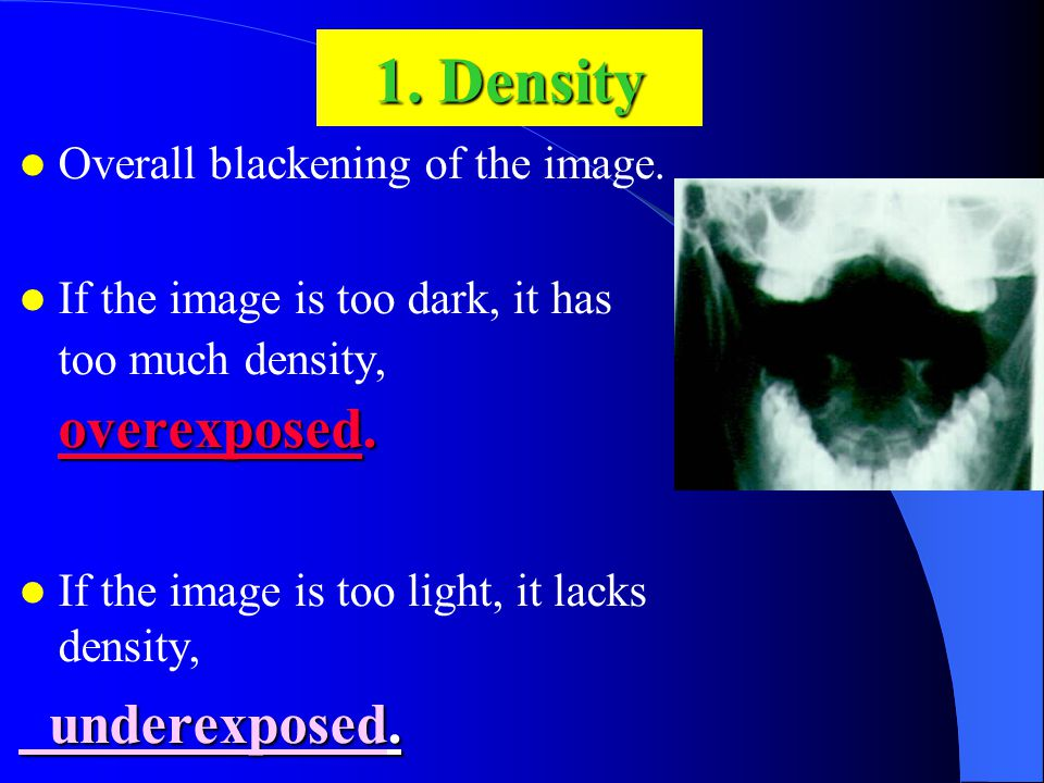 1. Density Overall blackening of the image. overexposed.