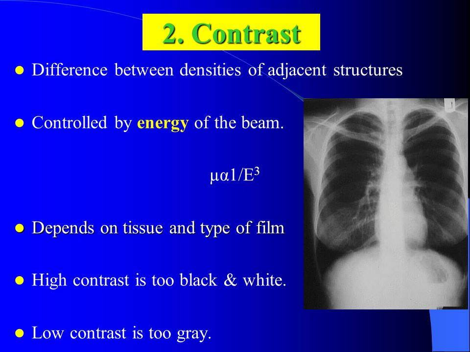 2. Contrast Difference between densities of adjacent structures Controlled by energy of the beam.