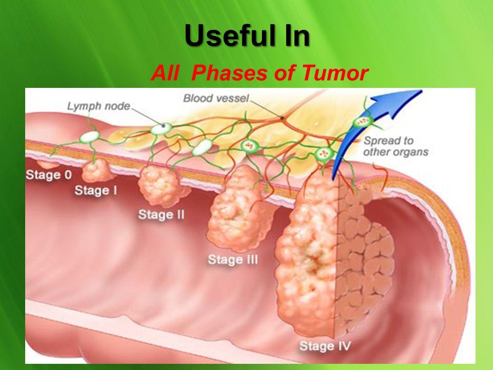 Brain - Headache, Depression, Alzheimer, Stroke, Trauma. Eyes - Retinal & Macular Degeneration Hypertension & Chronic Fatigue Metabolic - Diabetes Imm