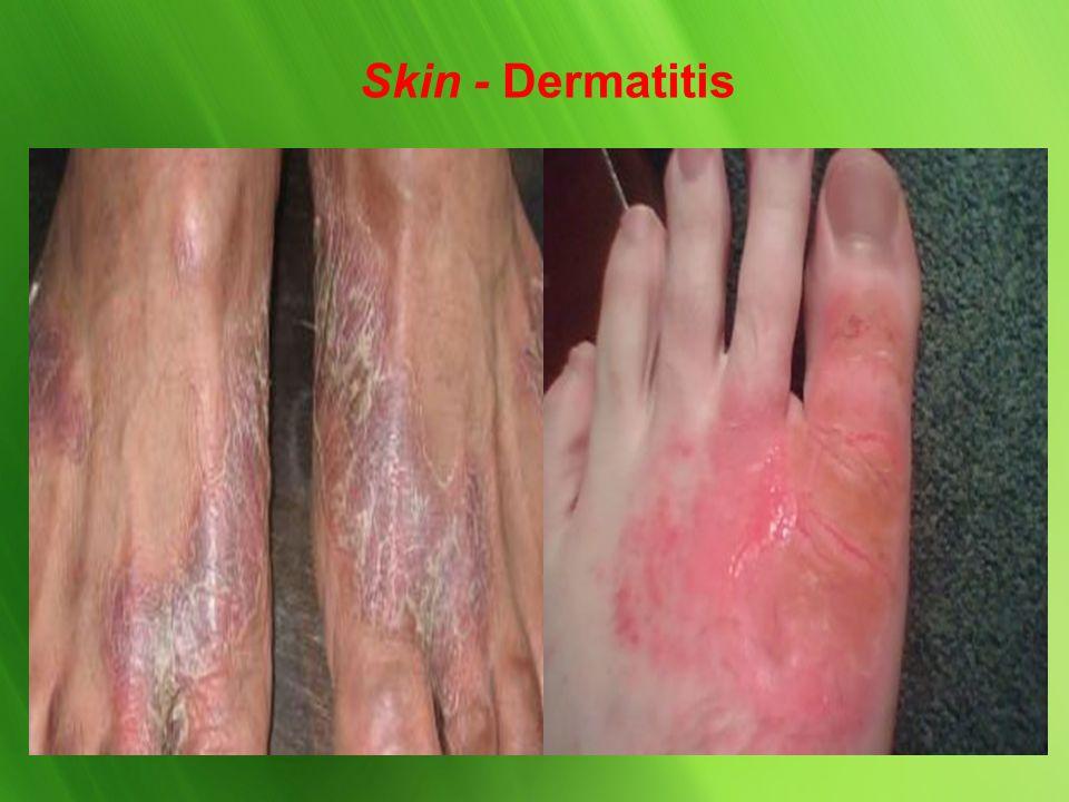 Skin - Psoriasis