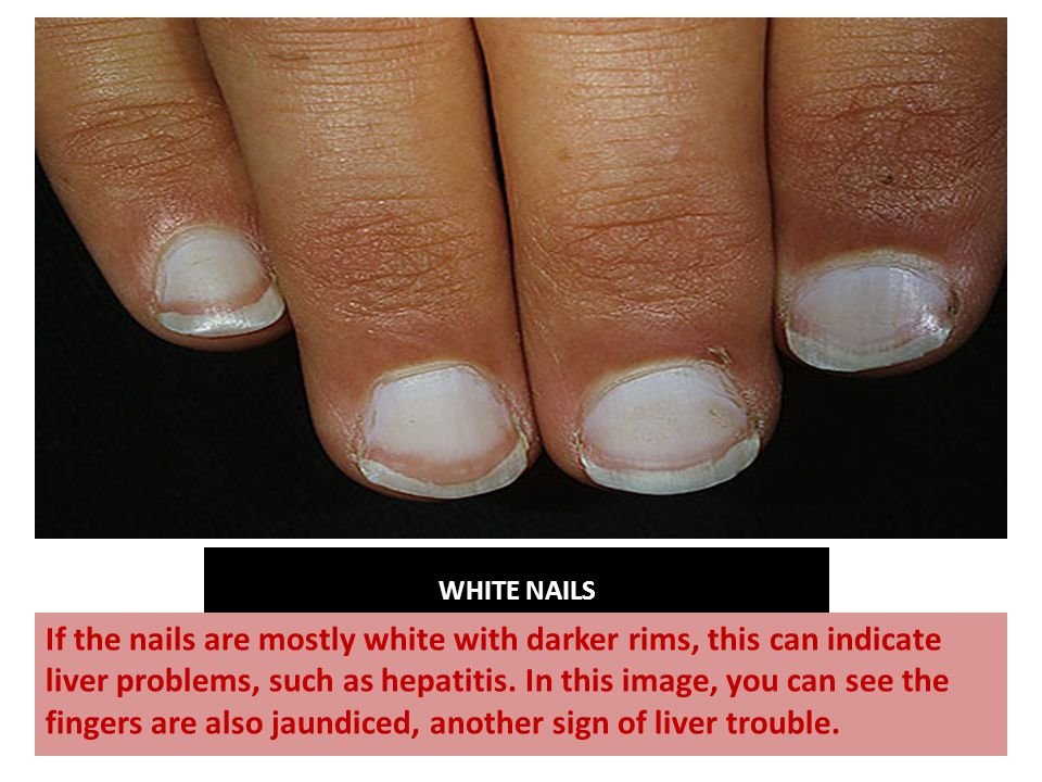 WHITE NAILS If the nails are mostly white with darker rims, this can indicate liver problems, such as hepatitis.