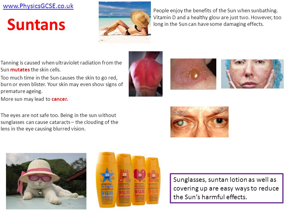 Suntans Tanning is caused when ultraviolet radiation from the Sun mutates the skin cells.