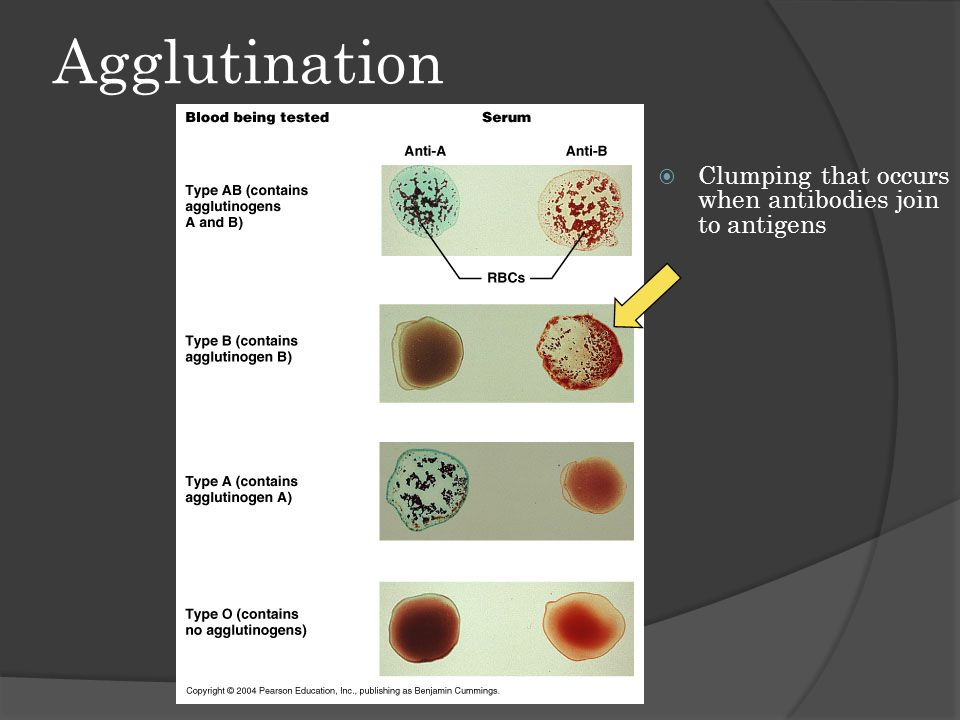 Agglutination  Clumping that occurs when antibodies join to antigens
