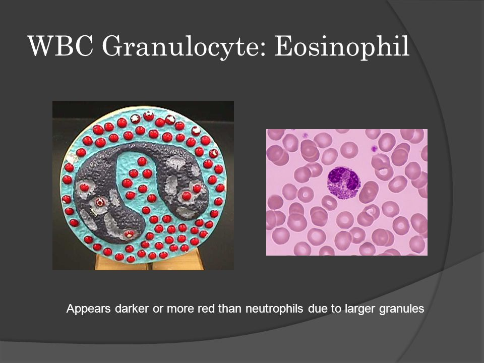WBC Granulocyte: Eosinophil Appears darker or more red than neutrophils due to larger granules