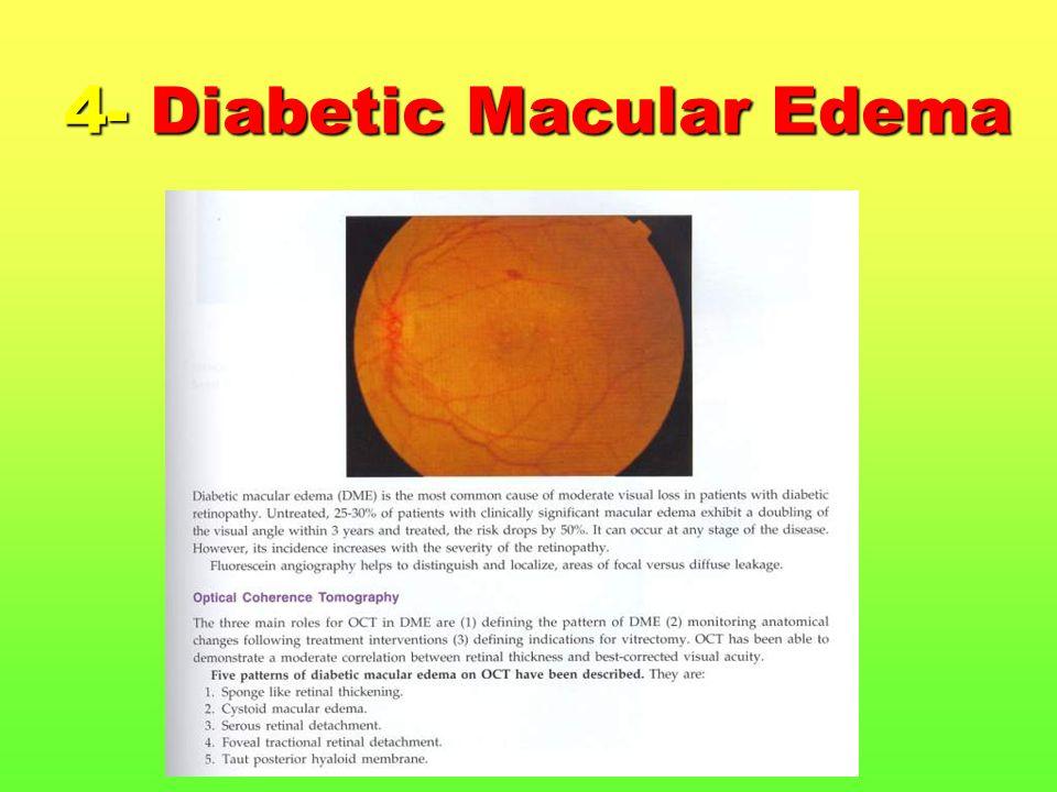 4- Diabetic Macular Edema