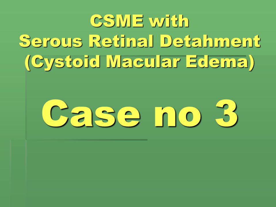 CSME with Serous Retinal Detahment (Cystoid Macular Edema) Case no 3