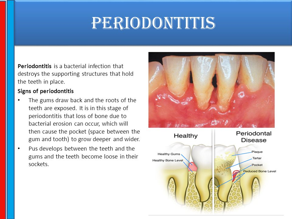 PERIODONTITIS Periodontitis is a bacterial infection that destroys the supporting structures that hold the teeth in place. Signs of periodontitis The