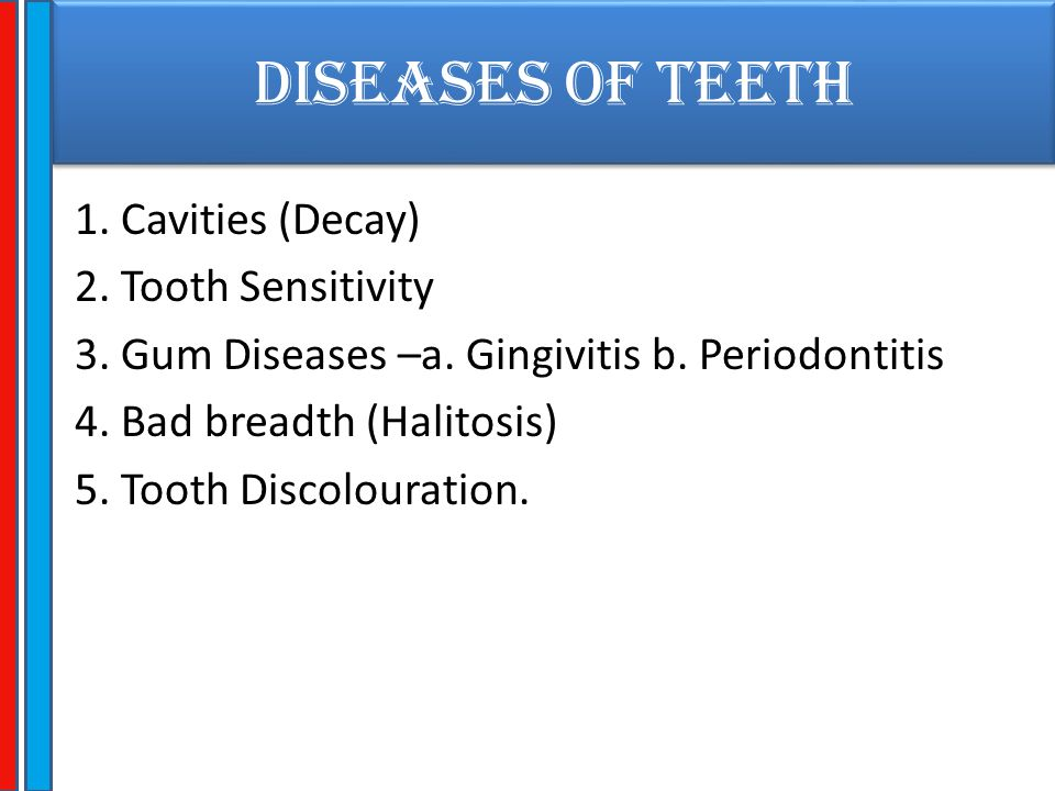 TOOTH DISCOLOURATION Brownish black extrinsic stains (Smoking) Greyish blue intrinsic stains (Tetracycline) Yellowish discolouration (Aging)
