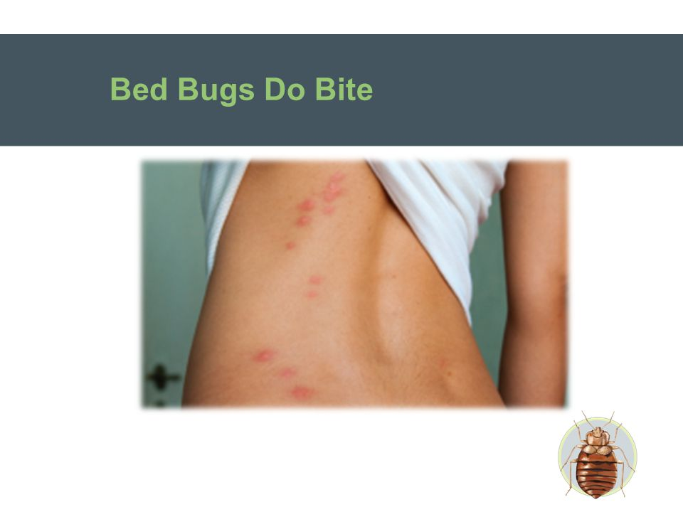 Myth #5 My partner seems to have signs of bites, but I do not – so we don't have bed bugs.