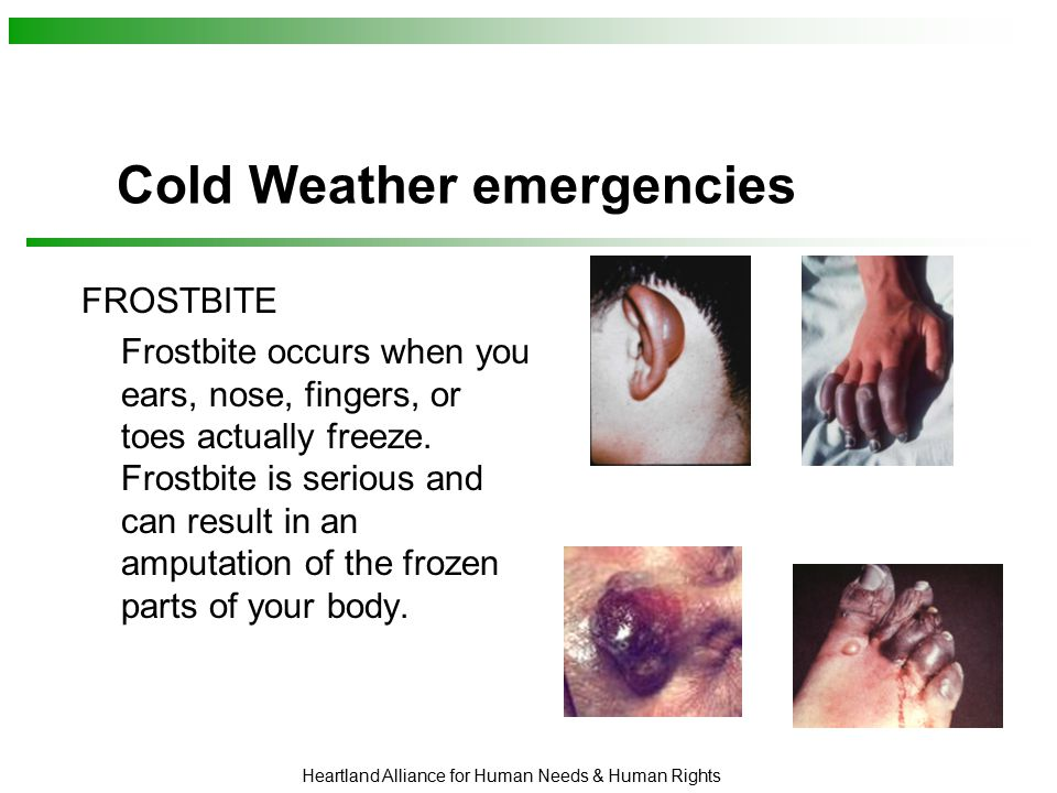 Heartland Alliance for Human Needs & Human Rights Cold Weather emergencies FROSTBITE Frostbite occurs when you ears, nose, fingers, or toes actually freeze.