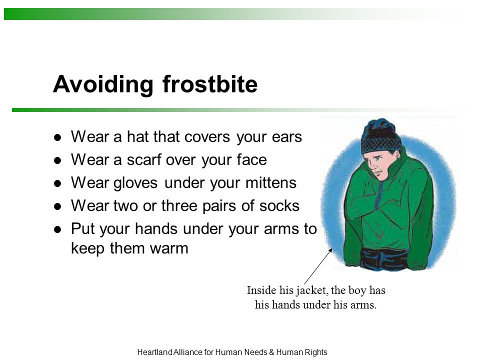 Heartland Alliance for Human Needs & Human Rights Avoiding frostbite Wear a hat that covers your ears Wear a scarf over your face Wear gloves under yo