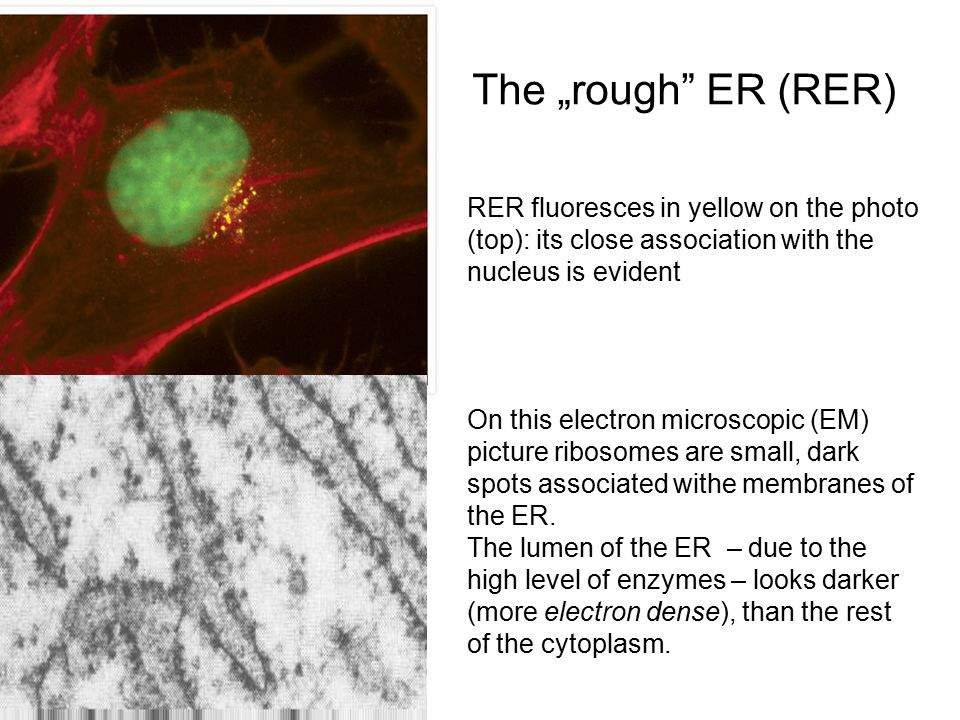 "The ""rough ER (RER) RER fluoresces in yellow on the photo (top): its close association with the nucleus is evident On this electron microscopic (EM) picture ribosomes are small, dark spots associated withe membranes of the ER."