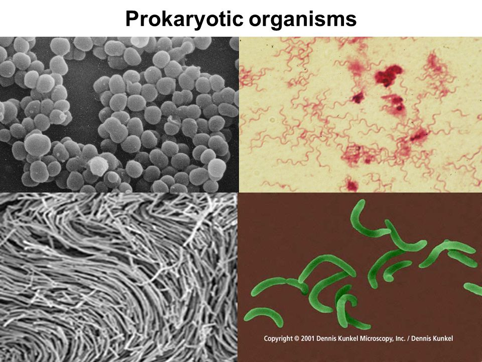 Prokaryotic organisms
