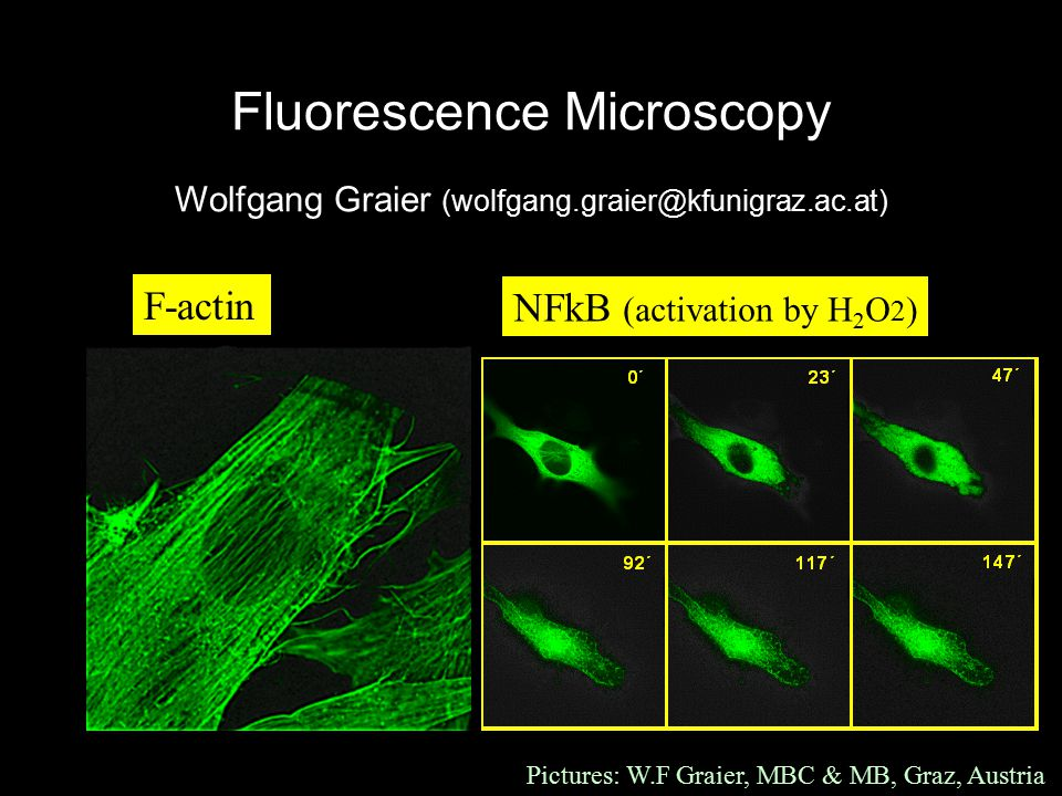 Fluorescence Microscopy Wolfgang Graier (wolfgang.graier@kfunigraz.ac.at) F-actin NFkB (activation by H 2 O 2 ) Pictures: W.F Graier, MBC & MB, Graz, Austria