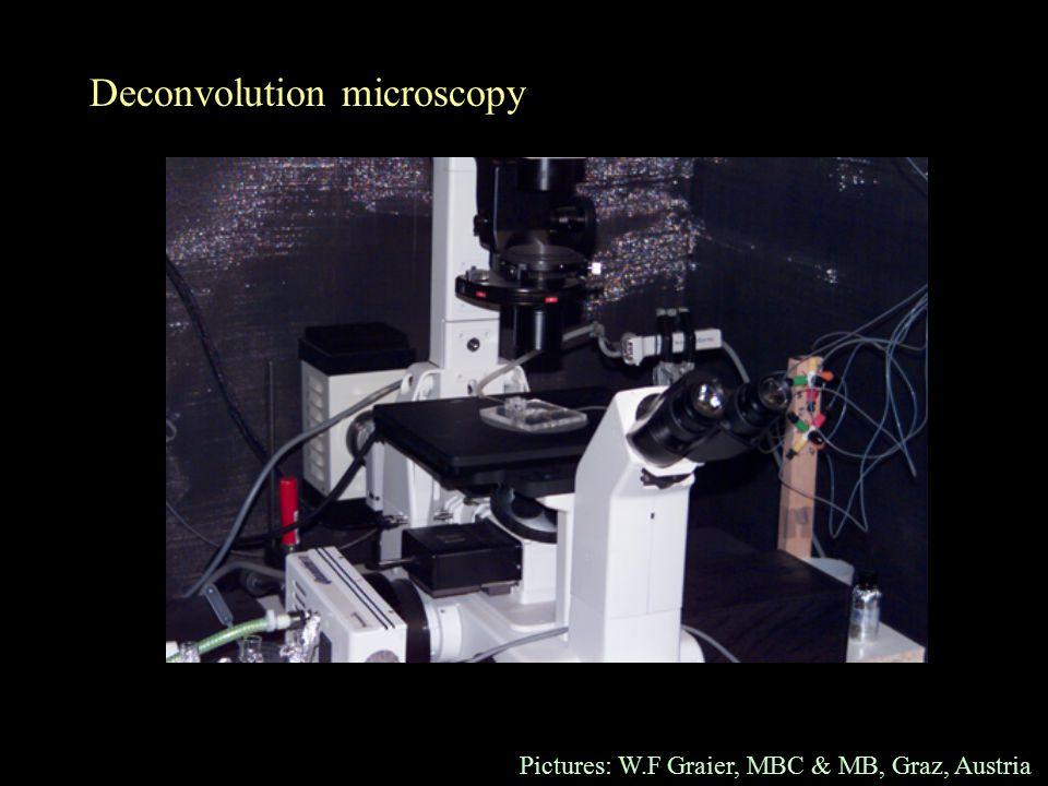 Deconvolution microscopy Pictures: W.F Graier, MBC & MB, Graz, Austria