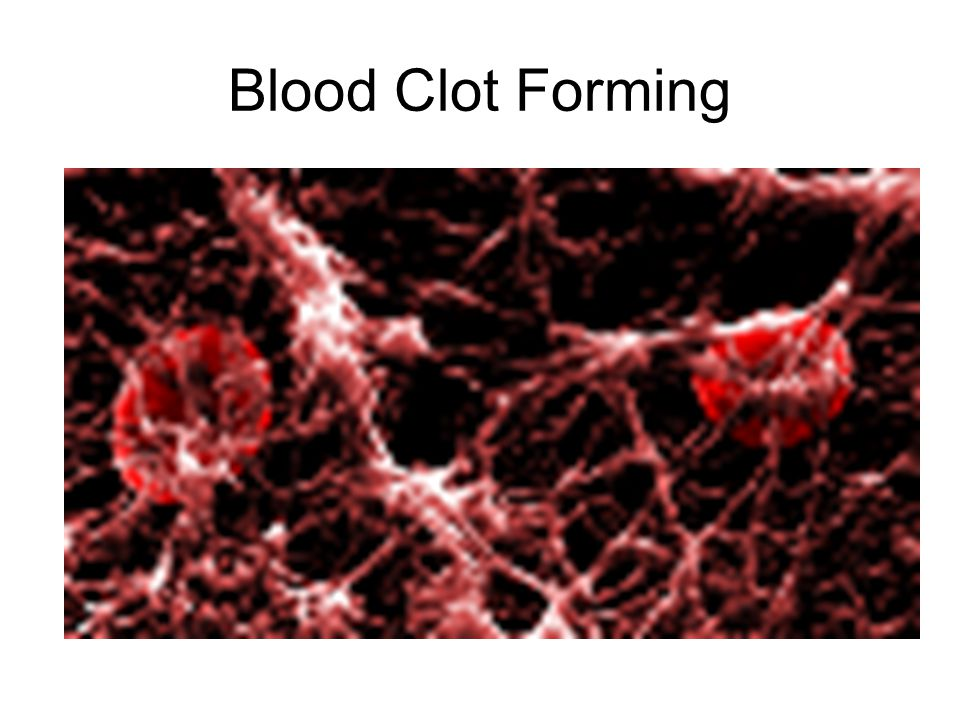 Blood Clot Forming