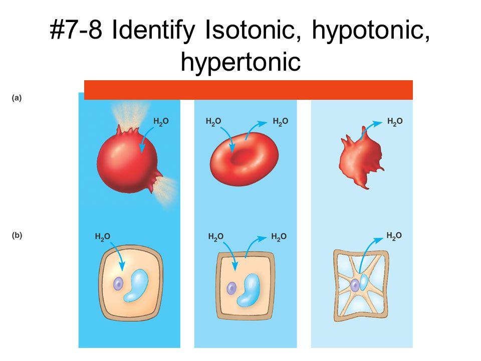 #7-8 Identify Isotonic, hypotonic, hypertonic