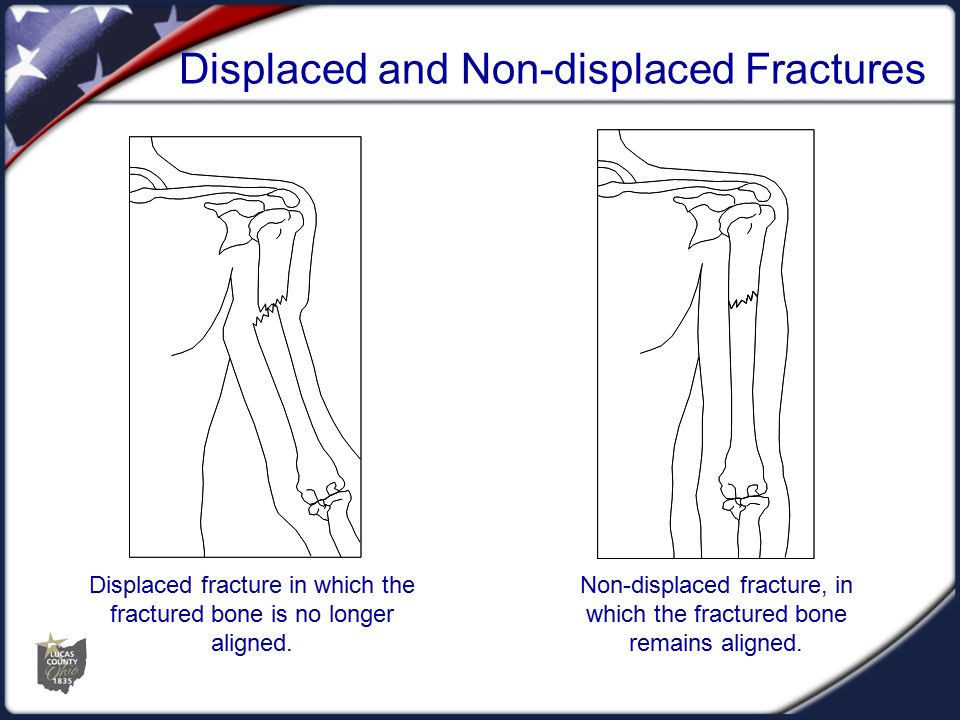 Dislocations  Dislocation is an injury to the ligaments around a joint that permits a separation of the bone from its normal position in a joint.