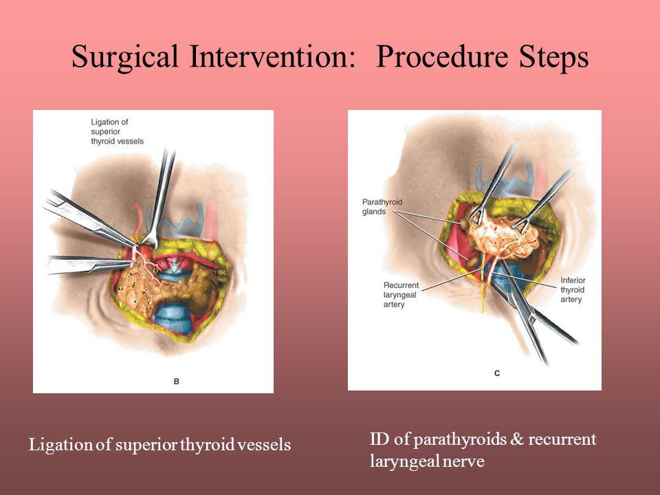 Surgical Intervention: Procedure Steps ID of parathyroids & recurrent laryngeal nerve Ligation of superior thyroid vessels