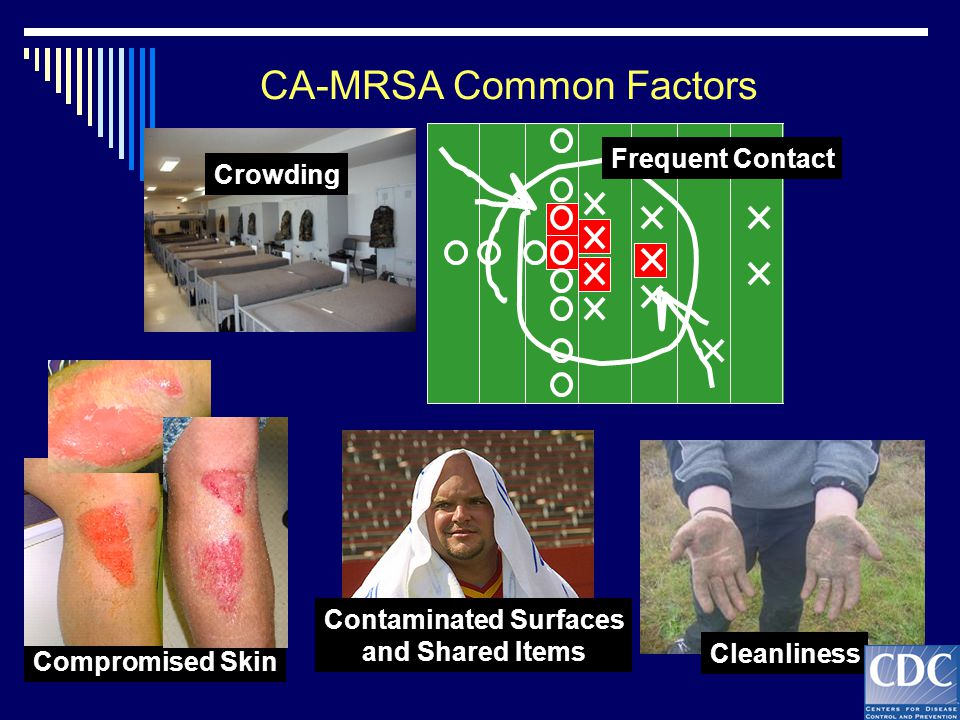 Frequent Contact Cleanliness Crowding Contaminated Surfaces and Shared Items Compromised Skin CA-MRSA Common Factors Compromised Skin