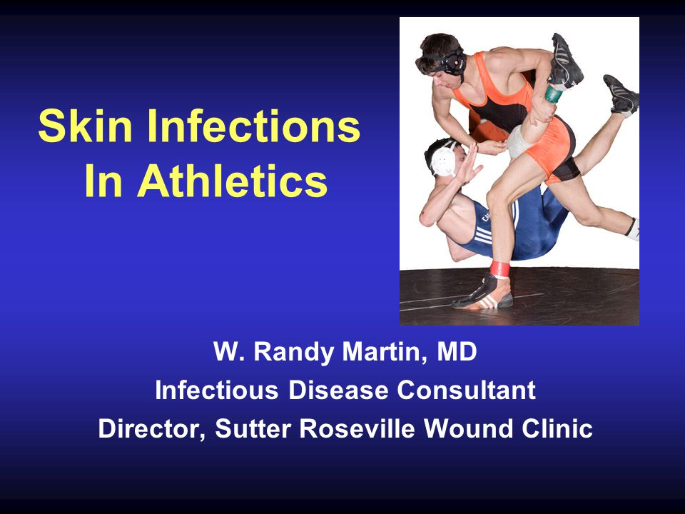 Skin Infections In Athletics W.