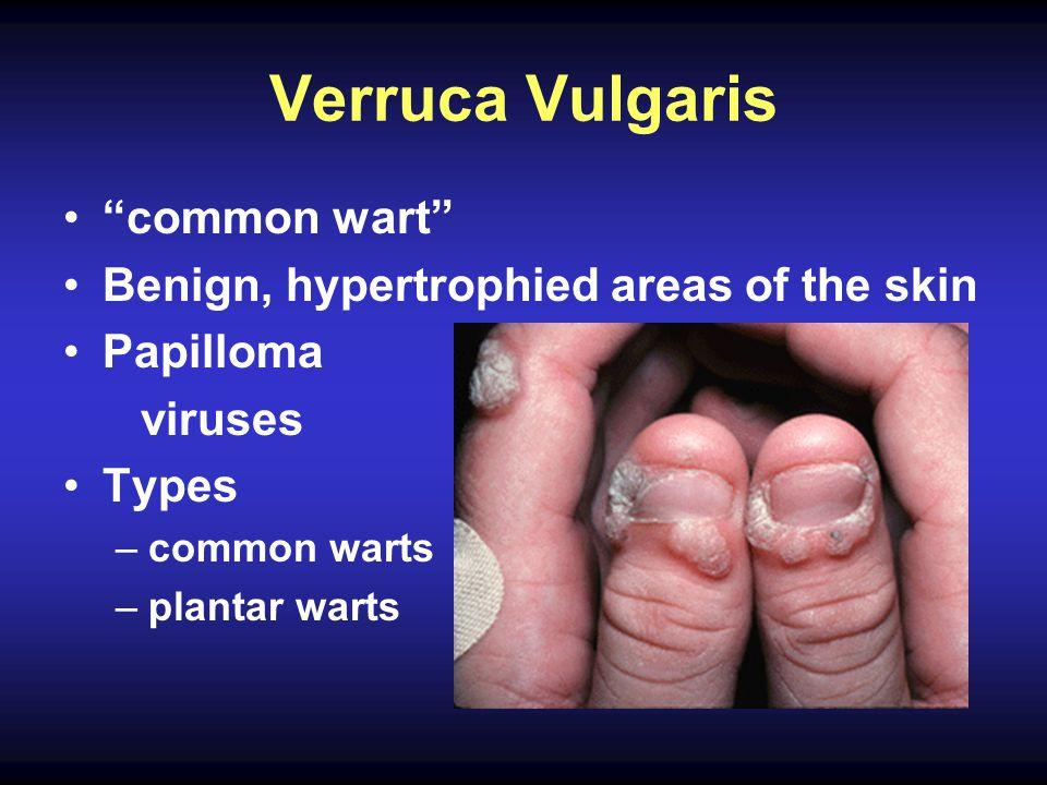Verruca Vulgaris common wart Benign, hypertrophied areas of the skin Papilloma viruses Types –common warts –plantar warts