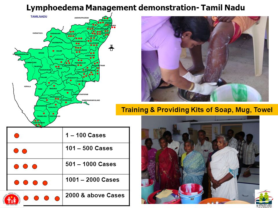 1 – 100 Cases 101 – 500 Cases 501 – 1000 Cases 1001 – 2000 Cases 2000 & above Cases Training & Providing Kits of Soap, Mug, Towel Lymphoedema Management demonstration- Tamil Nadu