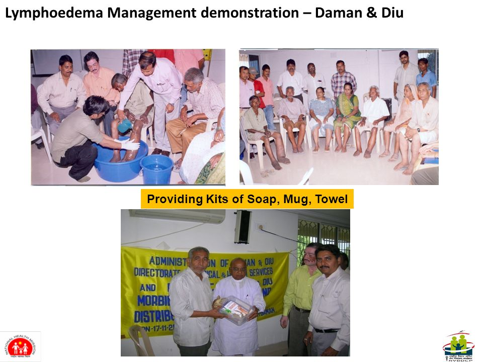Providing Kits of Soap, Mug, Towel Lymphoedema Management demonstration – Daman & Diu