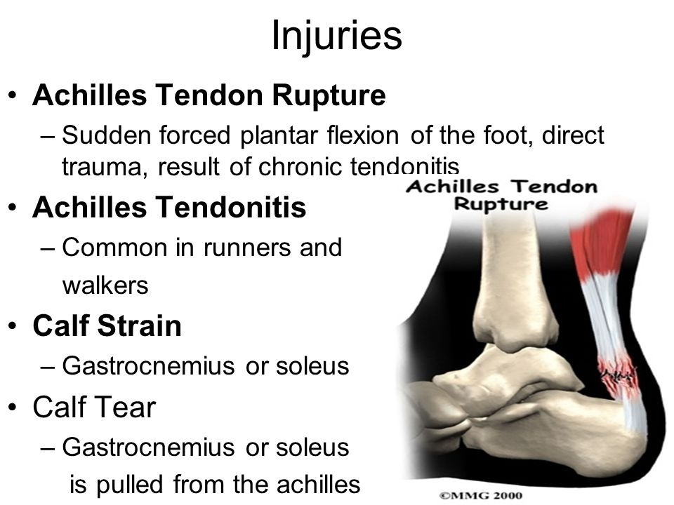 Injuries Achilles Tendon Rupture –Sudden forced plantar flexion of the foot, direct trauma, result of chronic tendonitis Achilles Tendonitis –Common i