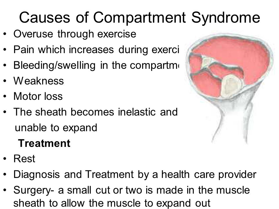 Causes of Compartment Syndrome Overuse through exercise Pain which increases during exercise Bleeding/swelling in the compartment Weakness Motor loss