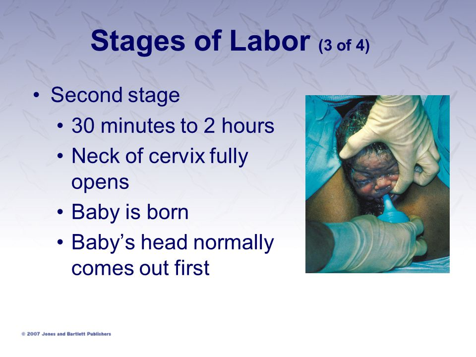 Stages of Labor (3 of 4) Second stage 30 minutes to 2 hours Neck of cervix fully opens Baby is born Baby's head normally comes out first