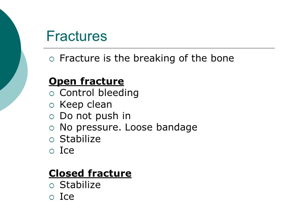 Fractures  Fracture is the breaking of the bone Open fracture  Control bleeding  Keep clean  Do not push in  No pressure. Loose bandage  Stabili