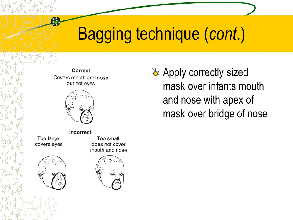 Bagging technique ( cont.) Apply correctly sized mask over infants mouth and nose with apex of mask over bridge of nose