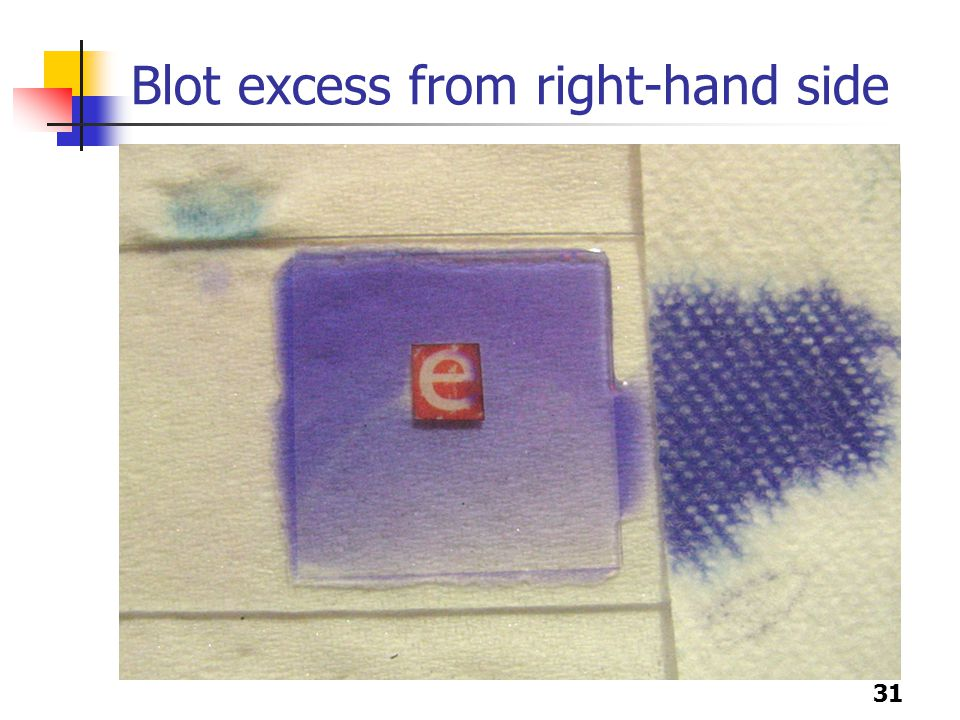 31 Blot excess from right-hand side