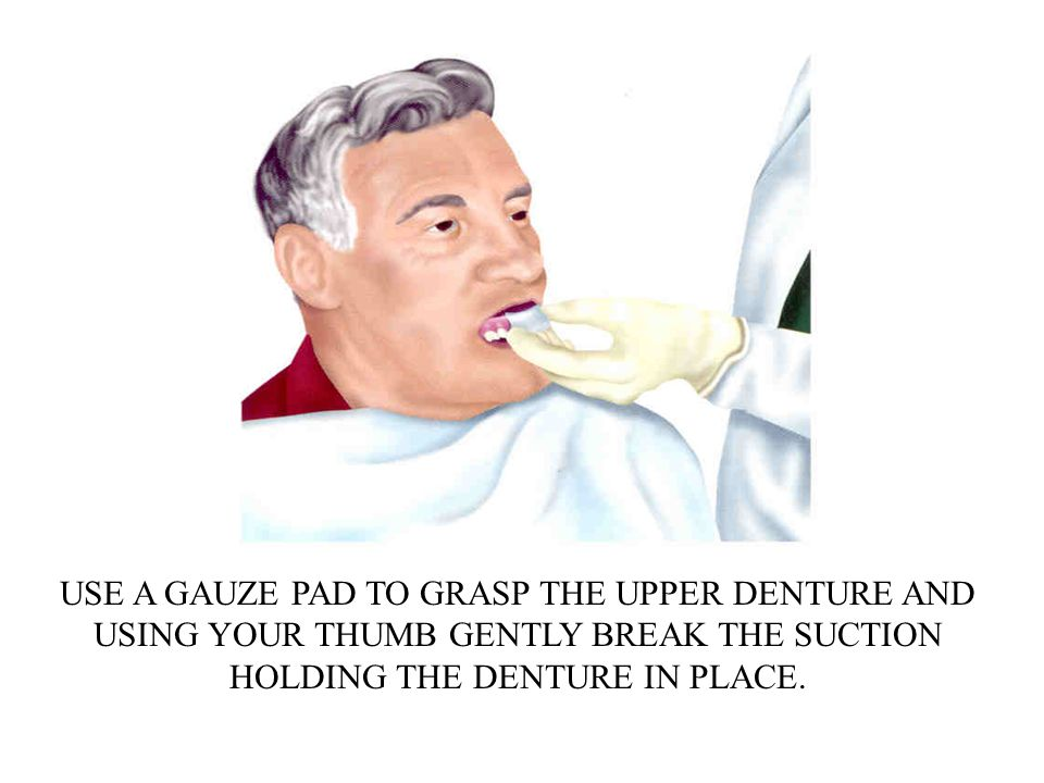 USE A GAUZE PAD TO GRASP THE UPPER DENTURE AND USING YOUR THUMB GENTLY BREAK THE SUCTION HOLDING THE DENTURE IN PLACE.