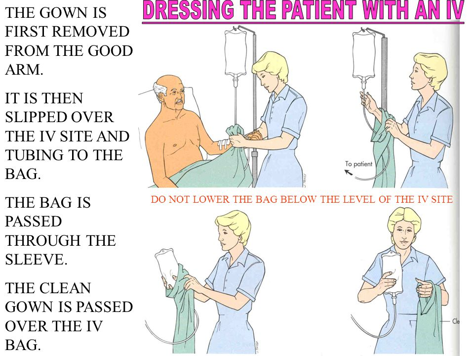 THE GOWN IS FIRST REMOVED FROM THE GOOD ARM. IT IS THEN SLIPPED OVER THE IV SITE AND TUBING TO THE BAG. THE BAG IS PASSED THROUGH THE SLEEVE. THE CLEA