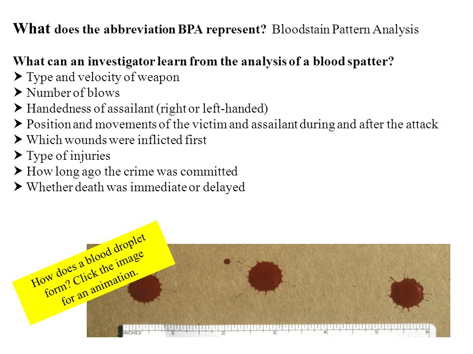 Expirated patterns have the appearance of medium to low velocity blood spatter.