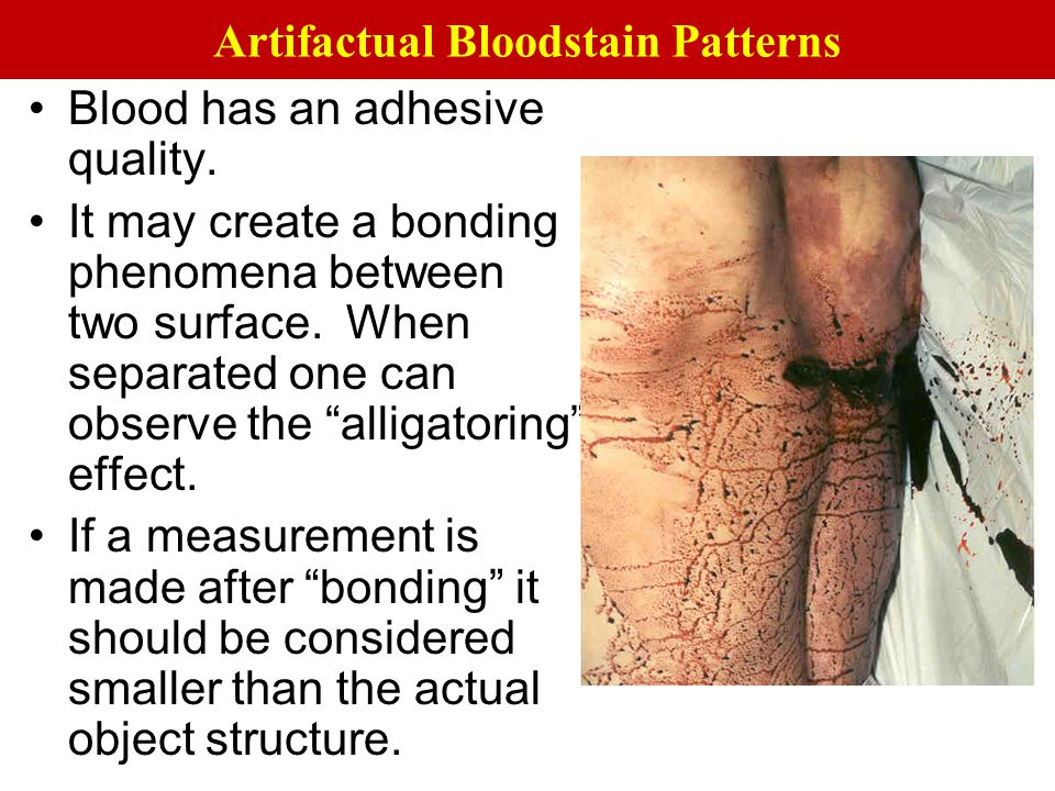 "Blood has an adhesive quality. It may create a bonding phenomena between two surface. When separated one can observe the ""alligatoring"" effect. If a m"