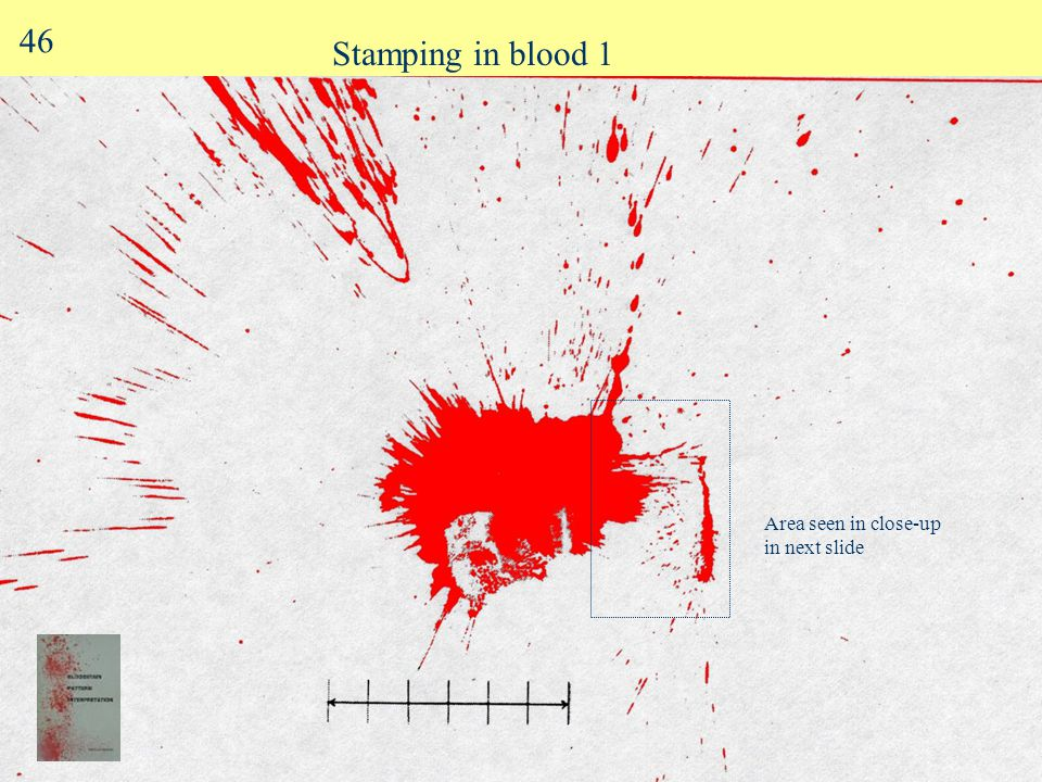 "Splash onto vertical surface 6"" ruler 10 ml blood thrown 1 m onto a vertical target surface 45"
