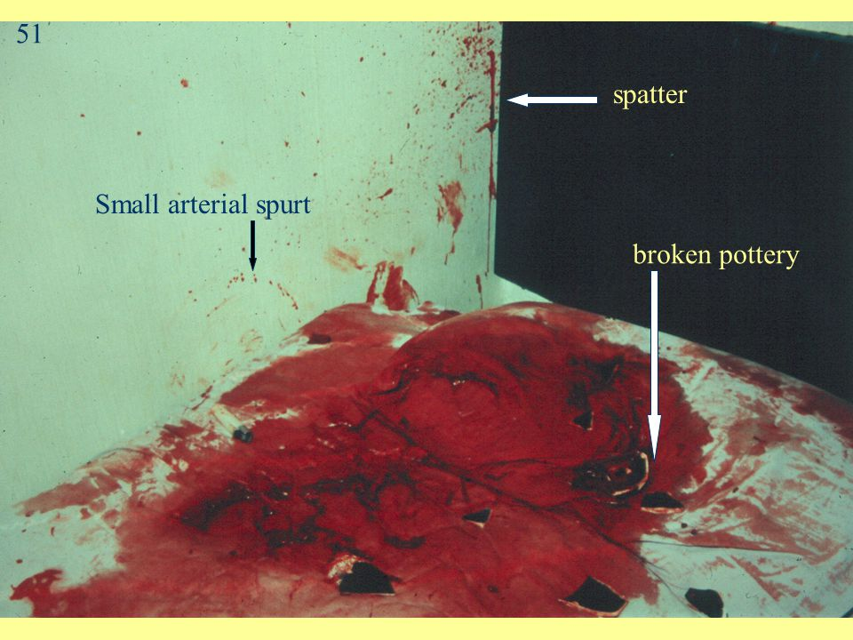Arterial Spurt Pattern Blood exiting body under arterial pressure Large stains with downward flow on vertical surfaces wave-form of pulsatile flow may