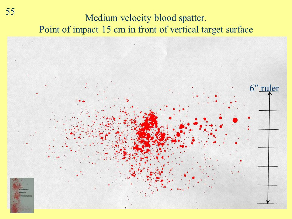 Medium Velocity Blood Spatter Blood source subjected to MV impact –(25 - 100 f/s, 7.5 - 30 m/s) Spot diameter: mostly 1 - 4 mm Blows with weapon (e.g.