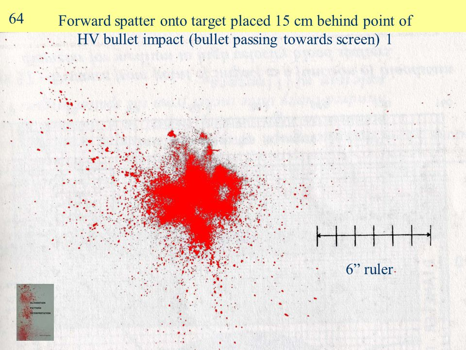 Forward spatter (5 ms after bullet impacted at 1000 f/s) 2.5 cm blood soaked target bullet 63