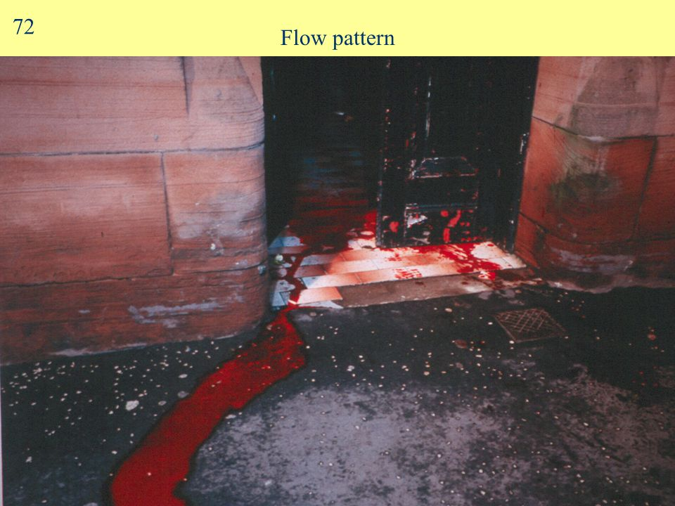 Flow Patterns Blood flows horizontally & vertically Altered by contours, obstacles Often ends in pool 71