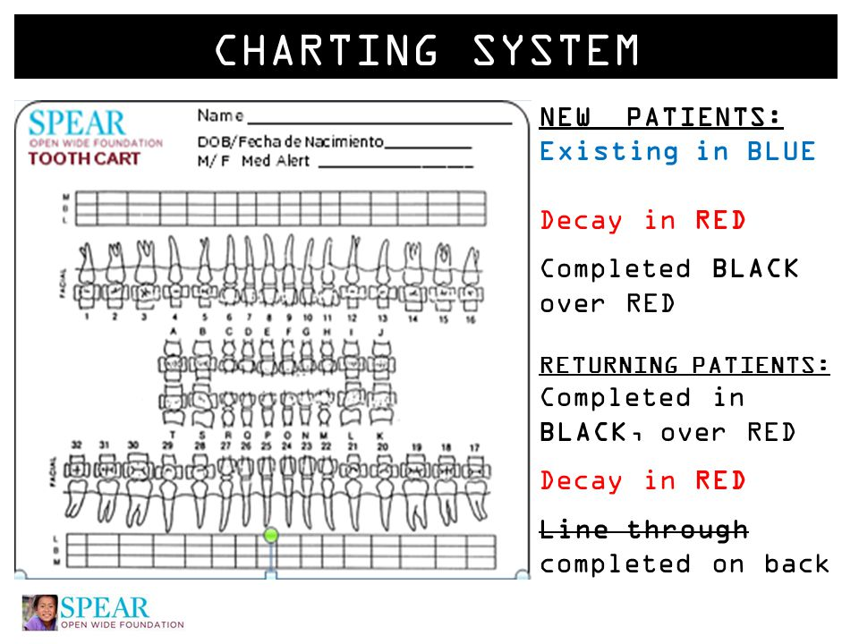 CHARTING SYSTEM NEW PATIENTS: Existing in BLUE Decay in RED Completed BLACK over RED RETURNING PATIENTS: Completed in BLACK, over RED Decay in RED Line through completed on back