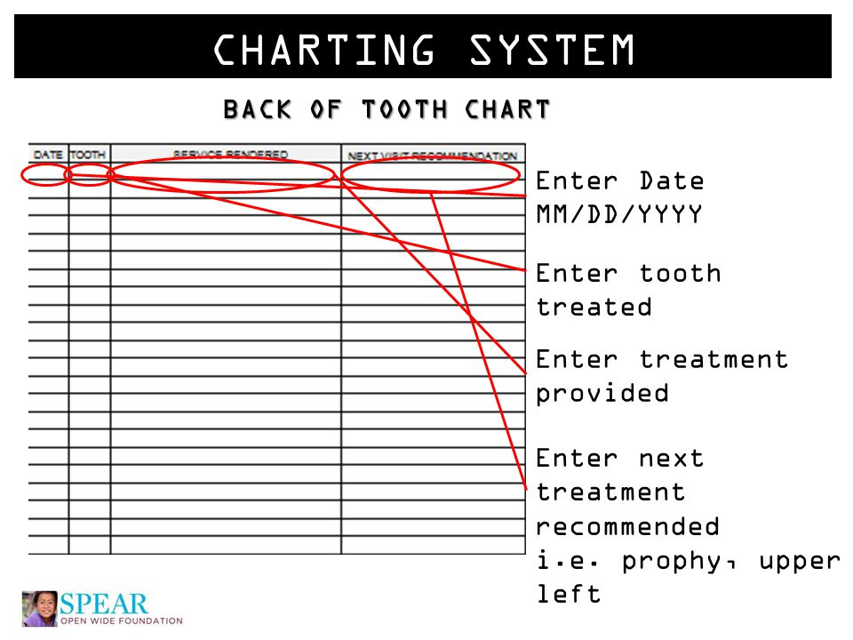 CHARTING SYSTEM BACK OF TOOTH CHART Enter Date MM/DD/YYYY Enter tooth treated Enter next treatment recommended i.e.