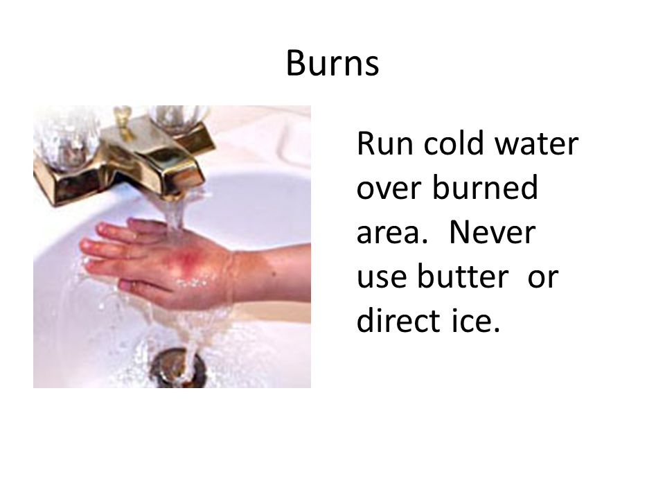 Burns Run cold water over burned area. Never use butter or direct ice.